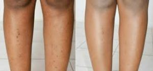 Beine mit Pickel bzw. Haare